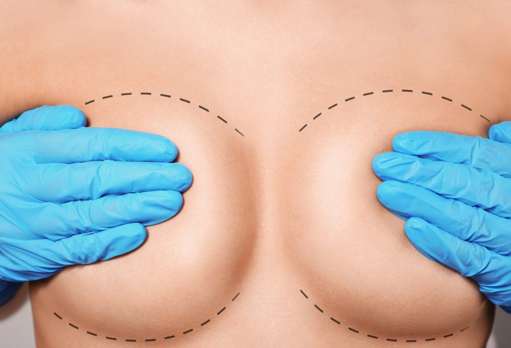 Female breasts covered with hands in rubber gloves, closeup