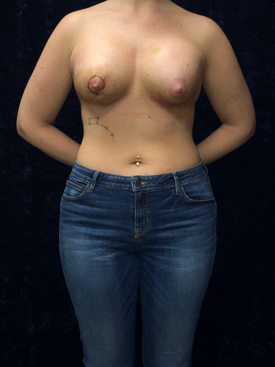breast asymmetry before and after NOVA Virginia