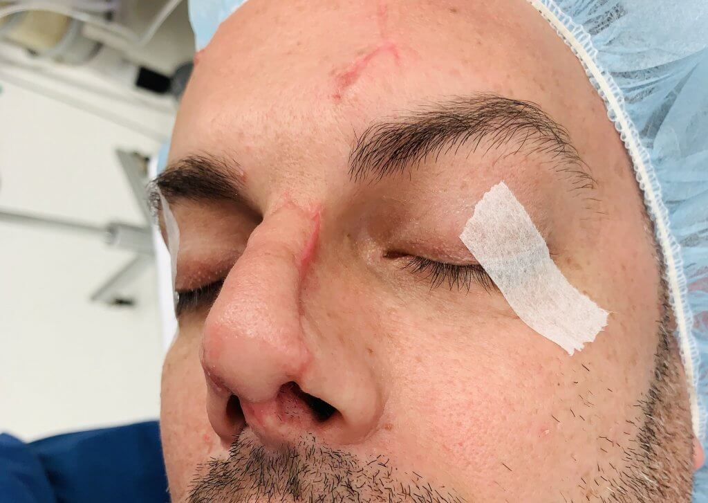 nasal reconstruction scar revision 2