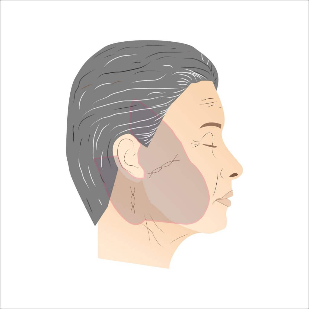 Facelift Procedure
